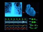 EKG Heart Rate Monitor Display video