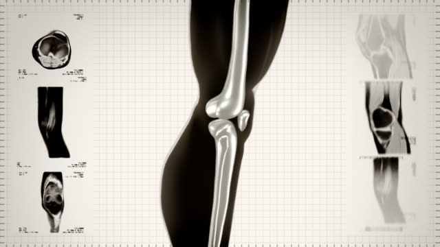 Highly detailed knee scan. Loopable. Black/white. White background. video