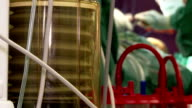 Hospital. medicine . Patient breathes using oxygen ventilator during surgery in operation room. video