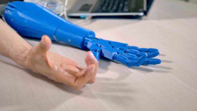 A human arm clenches a tight fist to test a bionic hand. video
