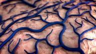 Human Brain disease video
