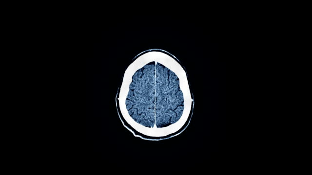 Human Brain MRI Scan video