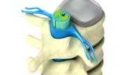 Human spine in details: Vertebra, bone marrow, disc and nerves. Isolated on white video