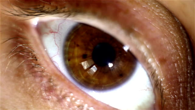 Humans eye macro shot with light-flash apple of eye reaction video