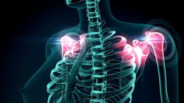 3D Illustration of shoulder painful, medical concept animation. video