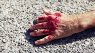 Injured hand with bloody lesions video