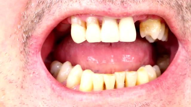 Insertion of dentures video