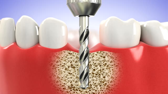 Installation process of dental implants. HD video