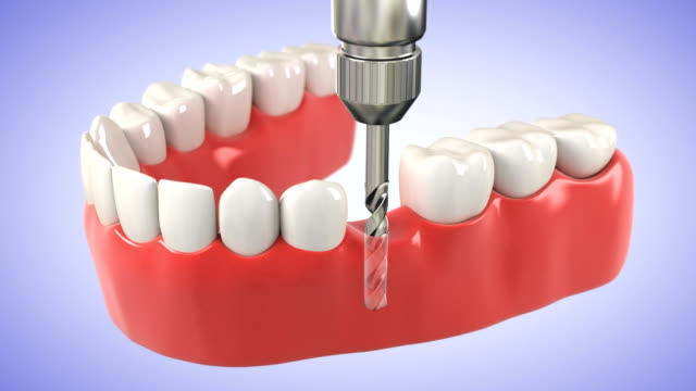 Installation process of dental implants. HD video