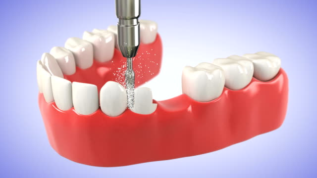 Installation process of Tooth Bridge. HD video