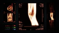 Knee MRI Scan. Top, front and lateral view. Amber. video