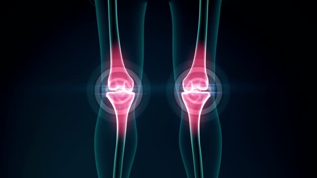 Knee pain animation. Healthy joint and unhealthy painful joint with osteoarthritis. video