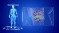 Knee pain animation. video
