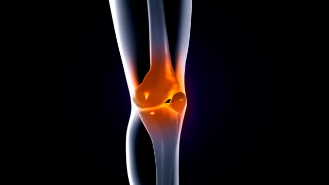 knee pain video