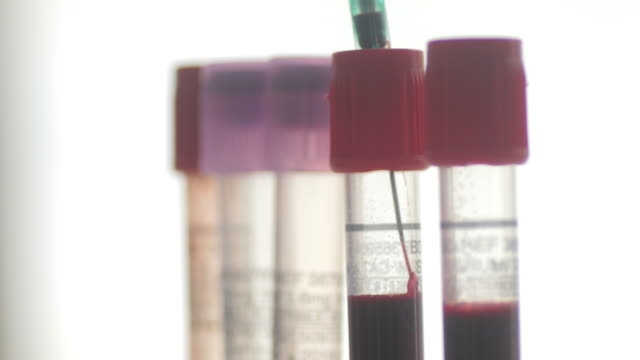 laboratory test blood from syringe to test tube for experiment , 4k(UHD) video