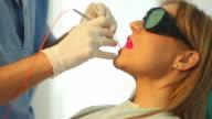 Laser dental treatment. video