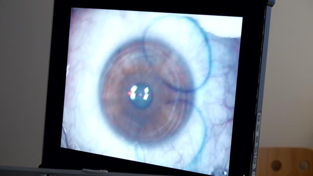 MACRO: Laser eye surgery, step 2 video