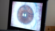 MACRO: Laser eye surgery, step 3 video