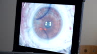 MACRO: Laser eye surgery, step 4 video