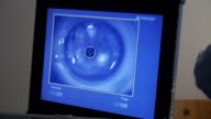 MACRO: Laser eye surgery, step 5 video
