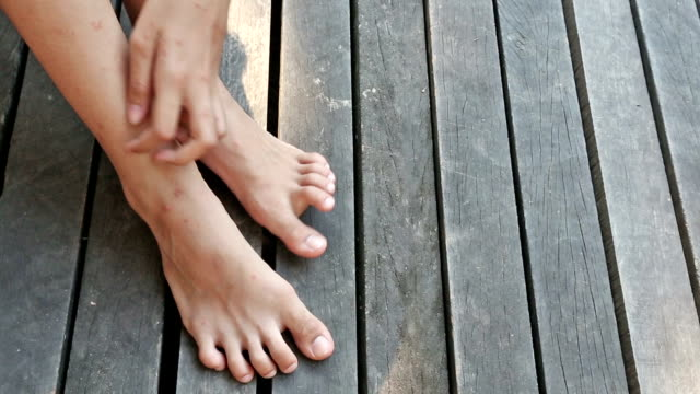 Leg and Foot Scratch video