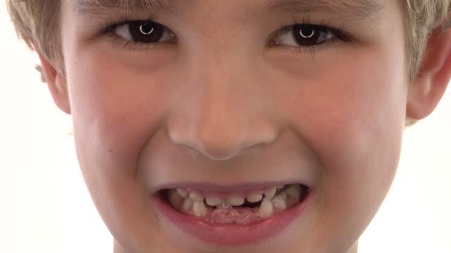 Little Boy Missing Teeth video