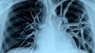 Live X-Ray Image of Human Torso video