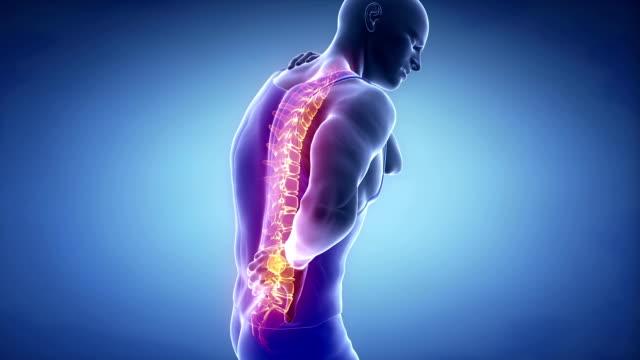 Male backbone injury pain - spine hurt concept video
