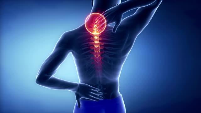 Male cervical  backbone pain - spine hurt concept video