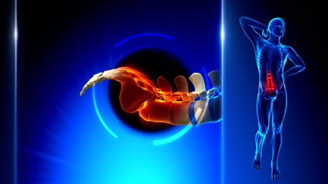 Male Hurt Backbone - Vertebrae Pain video