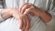 man scratching hand video