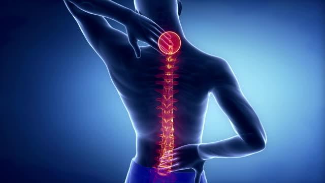 Man spine hurt - backbone injury pain concept video