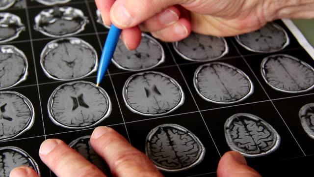 Many MRI images video