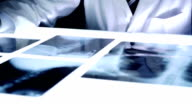 Medic Doctor Hospital Dark Room X ray Examine Bones Cancer video