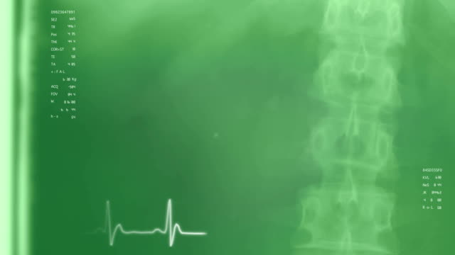 Medical Background 3: Spine Right, Green video