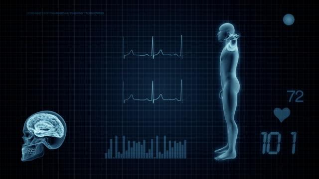 Medical Display Monitor video