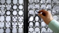 Medical research. video