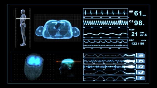 Medical Scanner MRI XRay Monitor Display video