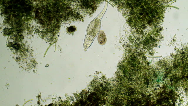 Microorganisms - rotifer and paramecium video