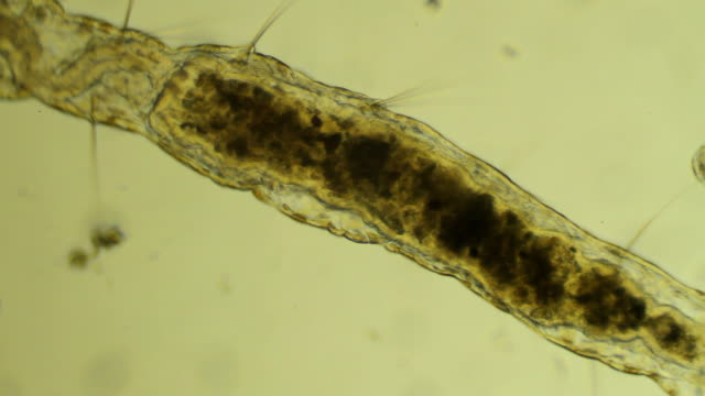 Microscopic worm Aelosomna crawls video