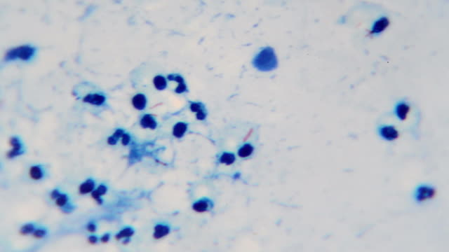 Mycrobacterium tuberculosis (red bacilli) video