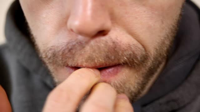 Nail Biting video