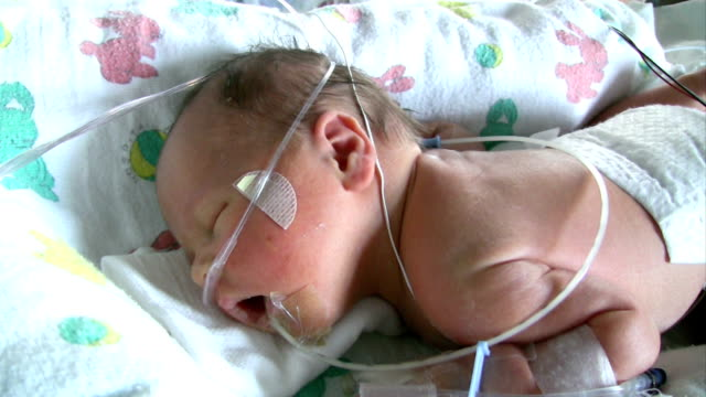 Nasal Cannula and Feeding Tube video
