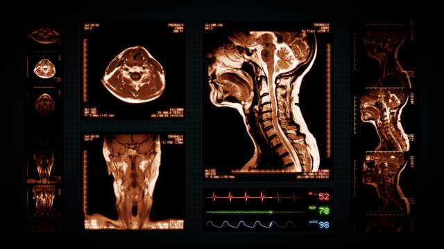 Neck MRI Scan. Top, front and lateral view. Amber. video