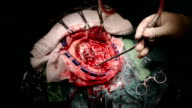 neurosurgeon and team remove brain tumour video