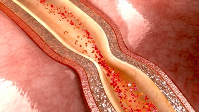 Nitroglycerin relaxing coronary artery video