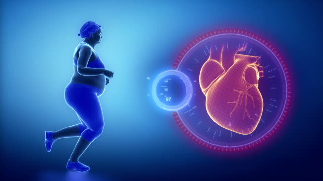 Obese woman heart problem video