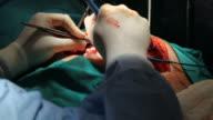 Open heart surgery video