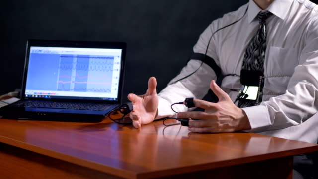 Open palms of a polygraph subject laid on their outer sides. video