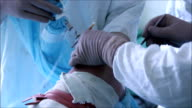 orthopedic surgery video